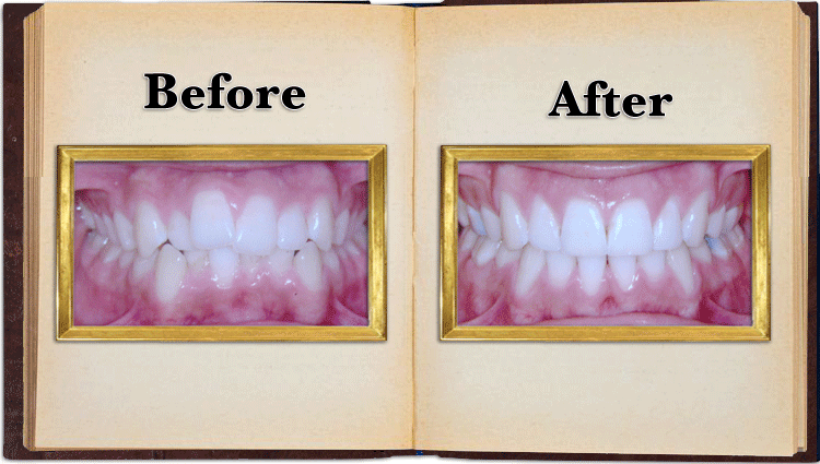Crowded Teeth Before and after